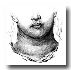 Anatomy of the Neck - The Large Thyroid Gland in a Girl's Neck