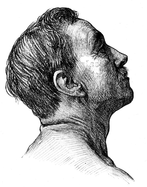 Human Face - Creases Seen on Back of Extended Neck