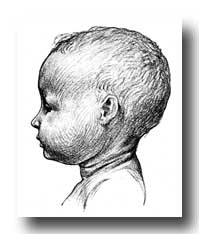 Human Face - Head and Neck of a Baby