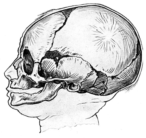 Human Skull - Skull of Young Child